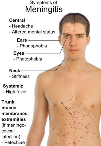 hipertenzija u meningitisa