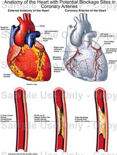 znakovi povišenog krvnog tlaka u ekg