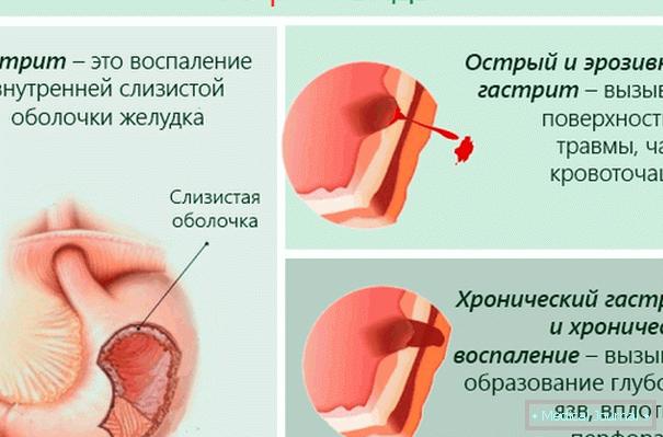hipertenzije, gastritis remisija