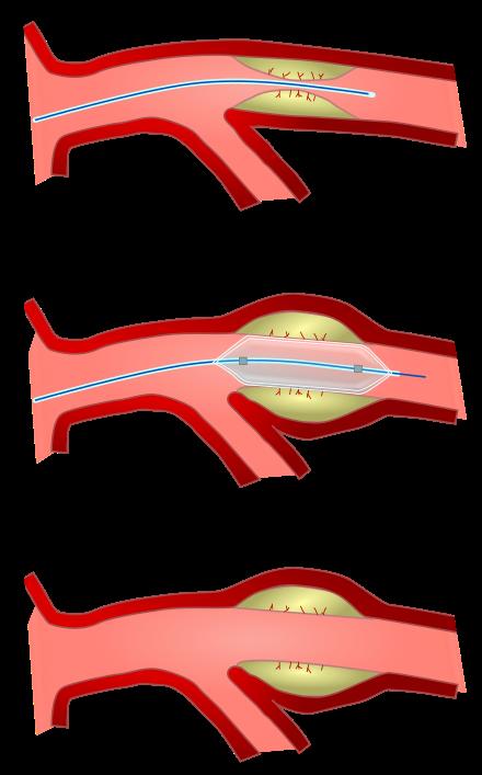 Zlatni korijen tinktura hipertenzija angina ,zakrpe za preglede liječnika hipertenzije