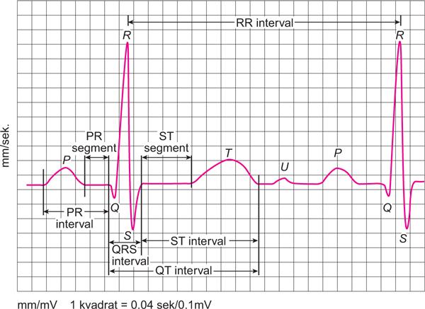 hipertrofija lijeve klijetke, hipertenzije