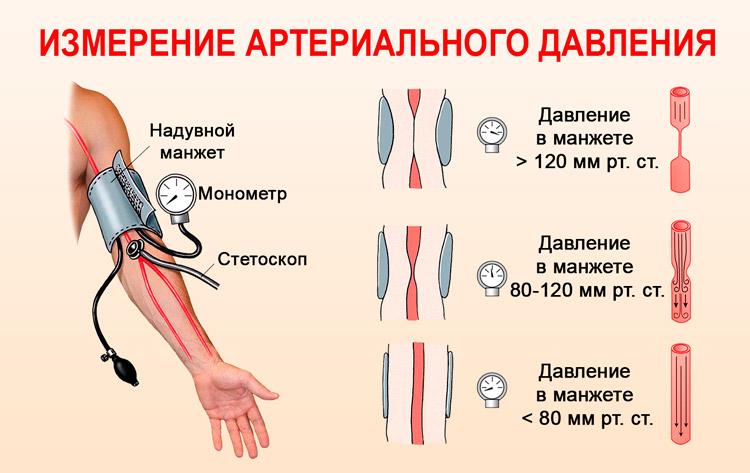 od ojačane posude hipertenzije