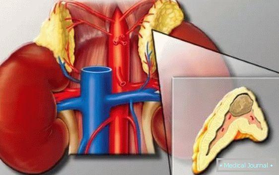 Šta uzrokuje visoki krvni pritisak