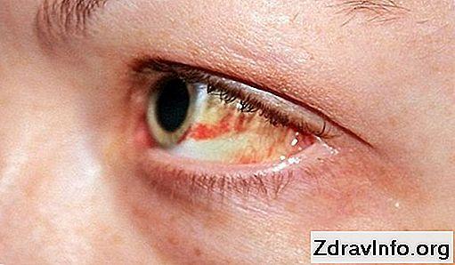 praska žila u oku hipertenzije)