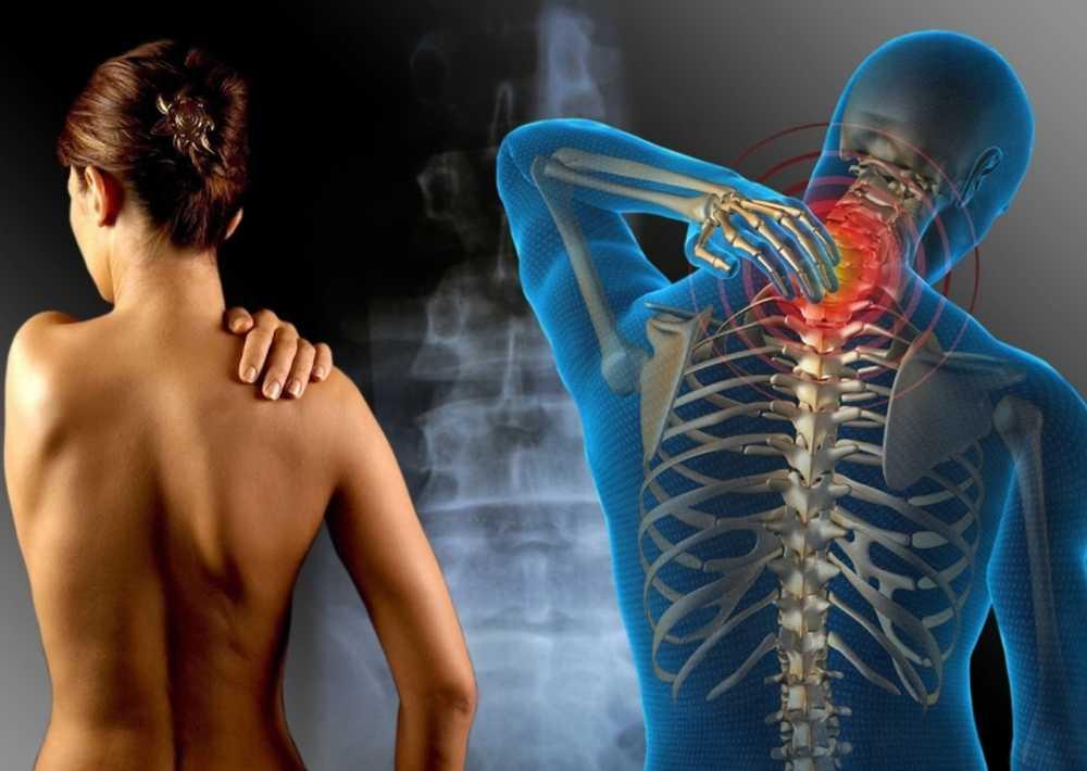 Cervikalna osteohondroza kao uzrok hipertenzije