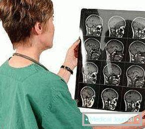 Cista mozga i hipertenzija