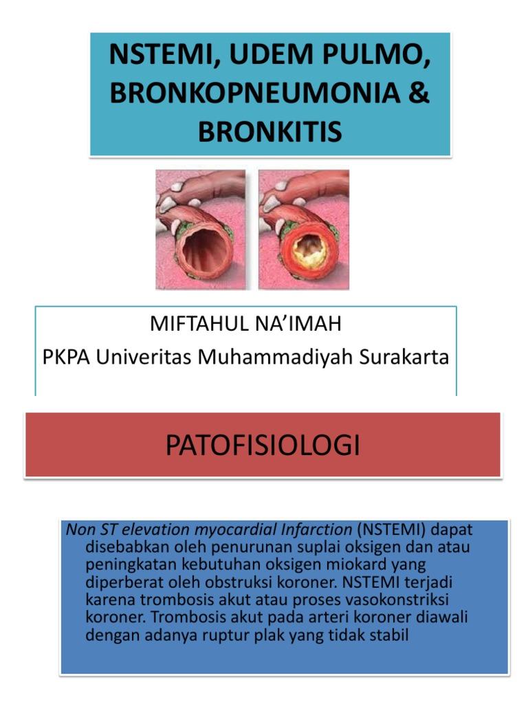 MSD priručnik dijagnostike i terapije: Kronična opstruktivna plućna bolest