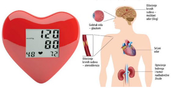 kao lijek za liječenje hipertenzije