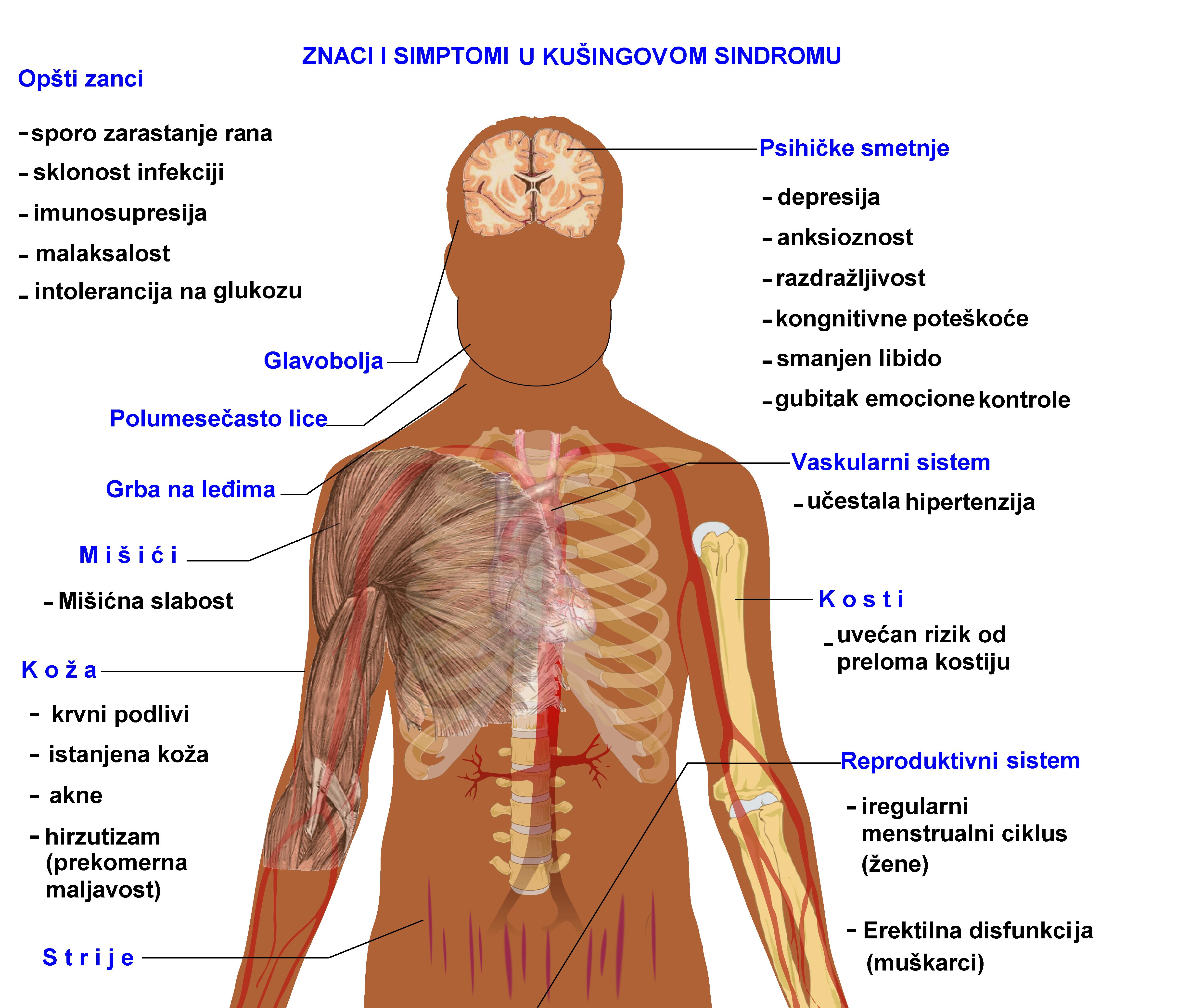 što je hipertenzija kože