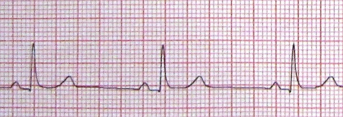 bradikardija i hipertenzija)