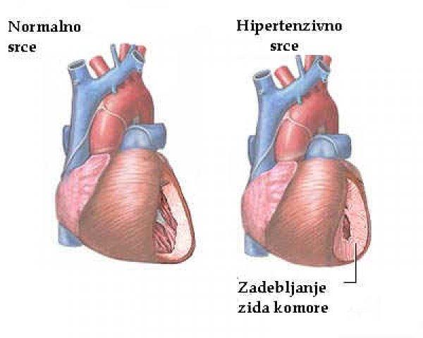 hipertenzija kod bolesti srca