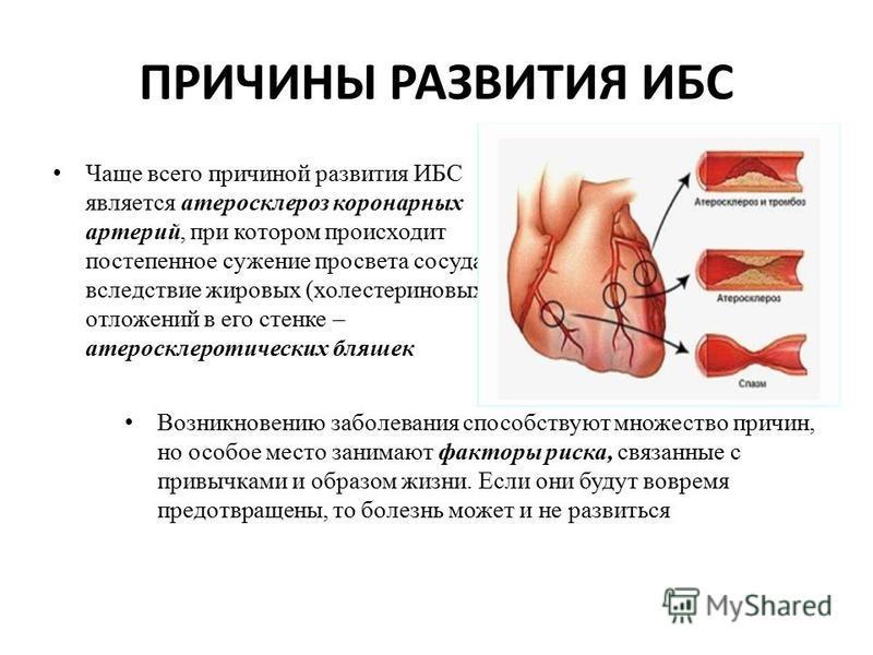 Artroza hipertenzija