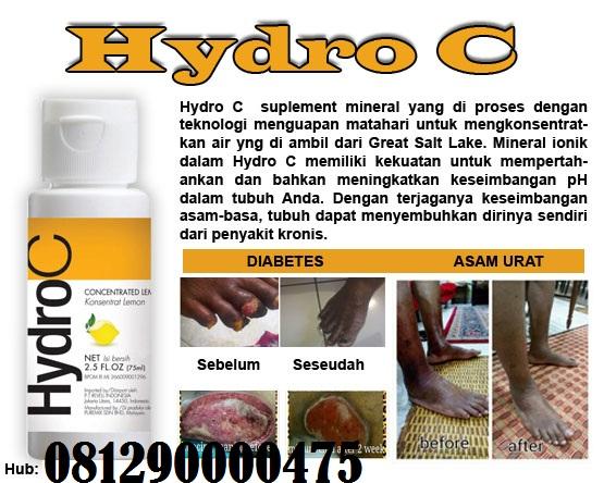 hidro hipertenzija