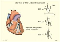 hipertenzija, srčani šum
