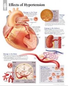 hipertenzija komplikacija gripe)