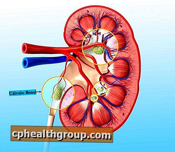 smjernice hipertenzija 2007