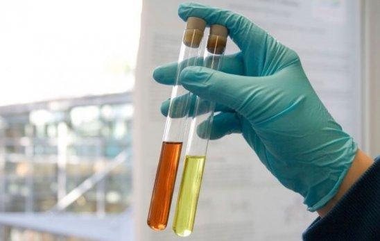 hipertenzija crvenih krvnih stanica u urinu zubni implantati i hipertenzije