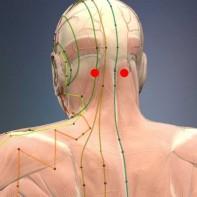 da li akupunktura za visoki krvni tlak
