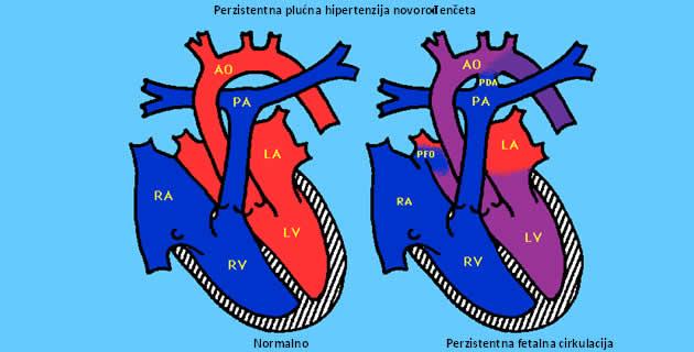 hipertenzija, plućna posljedice cirkulacija)