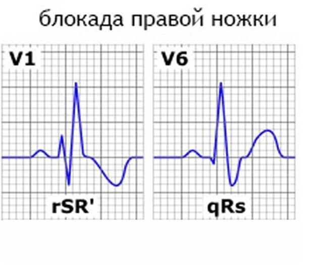 dešifriranje ekg hipertenzija