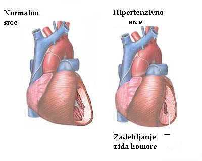 boli u želucu i hipertenzije