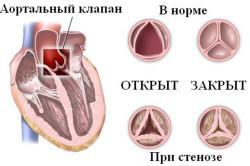 granice srčane tupost u hipertenzije)