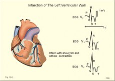 hipertenzija, bijelu i crvenu poligraf aritmije hipertenzija