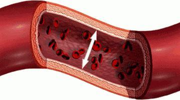 hipertenzija 120 70 tempalgin hipertenzija