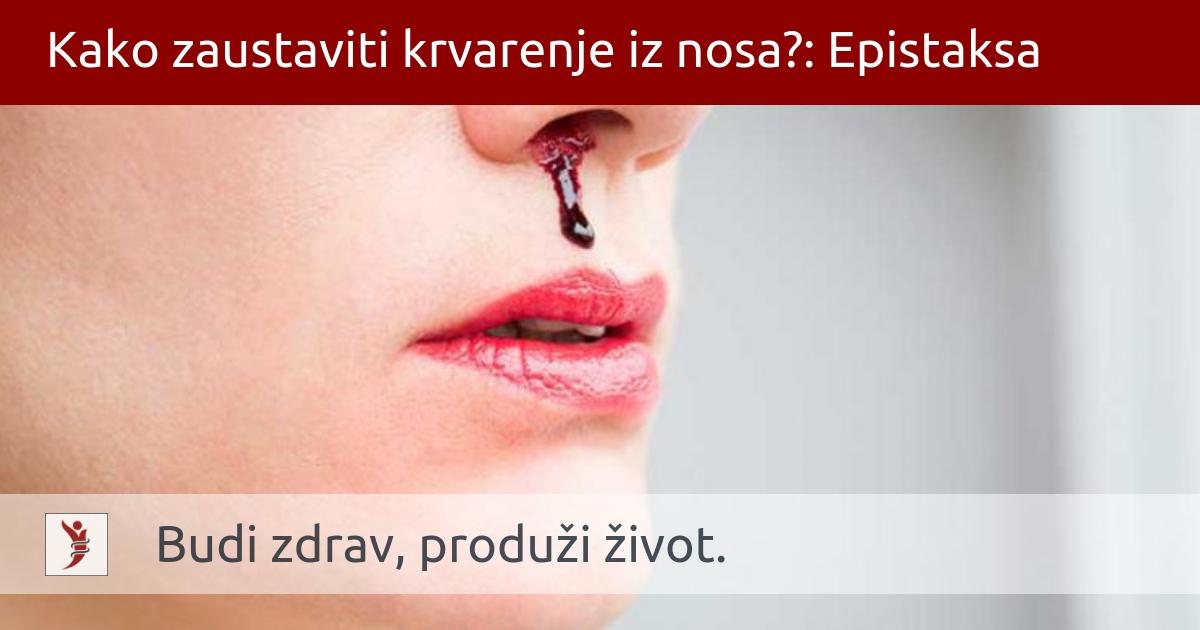 MSD medicinski priručnik za pacijente: Krvarenja iz nosa