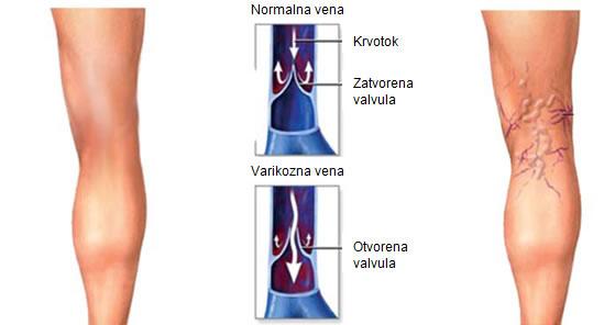 hipertenzija varikoziteti sekundarne hipertenzije icd 10