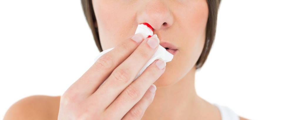 krvarenje iz nosa i hipertenzije