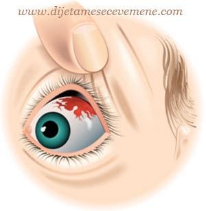 krvarenje u oku hipertenzije)