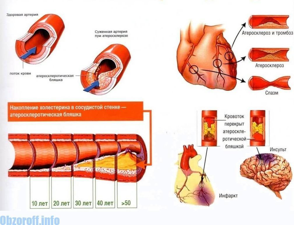 kako popraviti krvne žile u hipertenzije