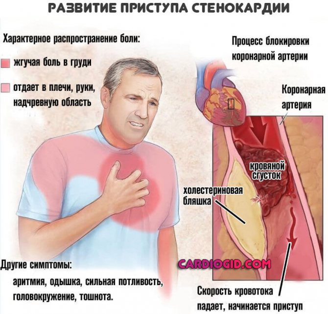 simptomi bol srca)