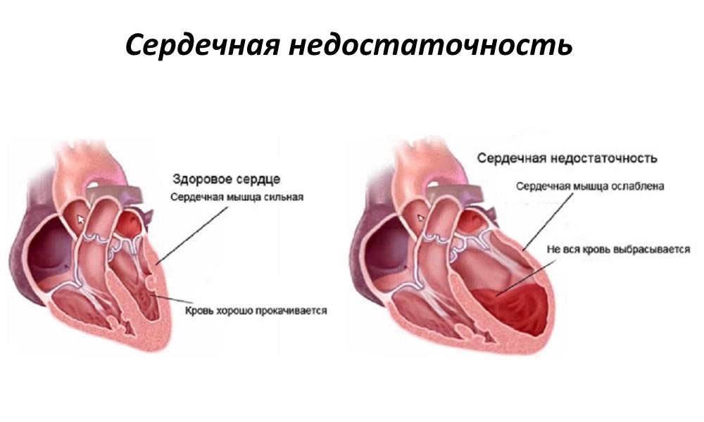 Što se može i ne može učiniti s hipertenzivnom krizom
