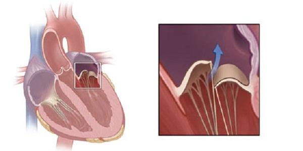 vitalayn hipertenzija
