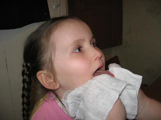 zvukoproiznosheniya učinak na hipertenziju